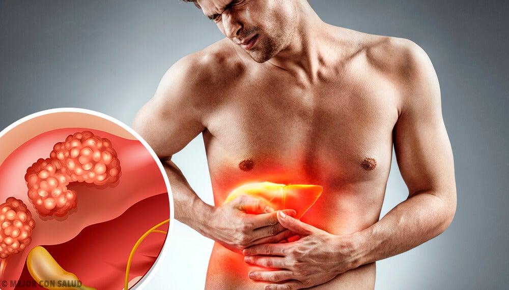 Cáncer de hígado: todo lo que debes saber