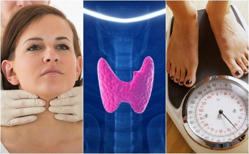¿Cómo saber si tienes hipotiroidismo? Conoce sus 10 síntomas