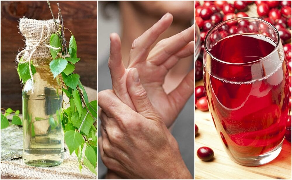 Cómo tratar el exceso de ácido úrico con 5 remedios caseros