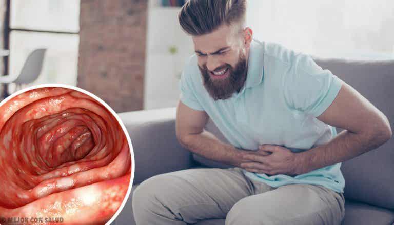 Colitis ulcerosa: todo lo que debes saber