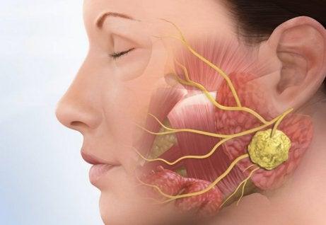 Diagnóstico del cálculo de la glándula salival