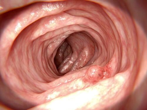Cámara grabando el interior del intestino