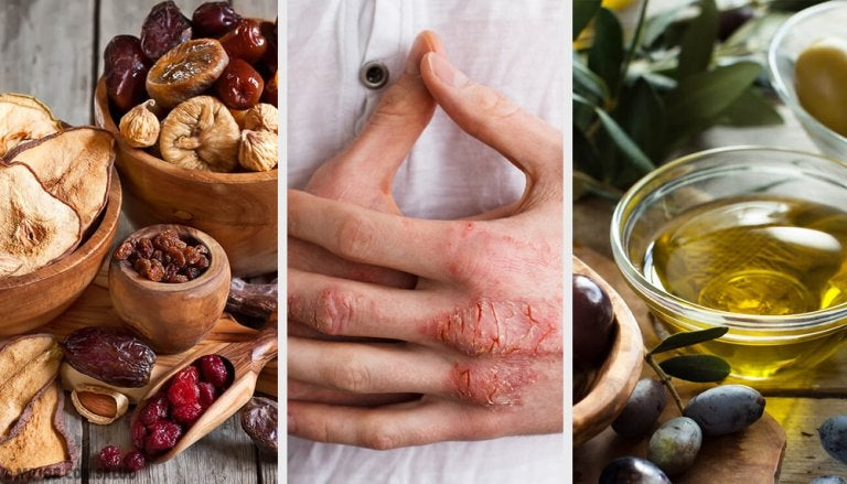 Eczemas de la piel: Causas, síntomas, diagnóstico y tratamiento
