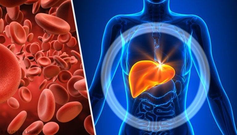 En qué consiste la hemocromatosis y cómo se diagnostica