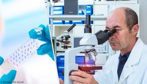 ¿En qué consiste una biopsia?