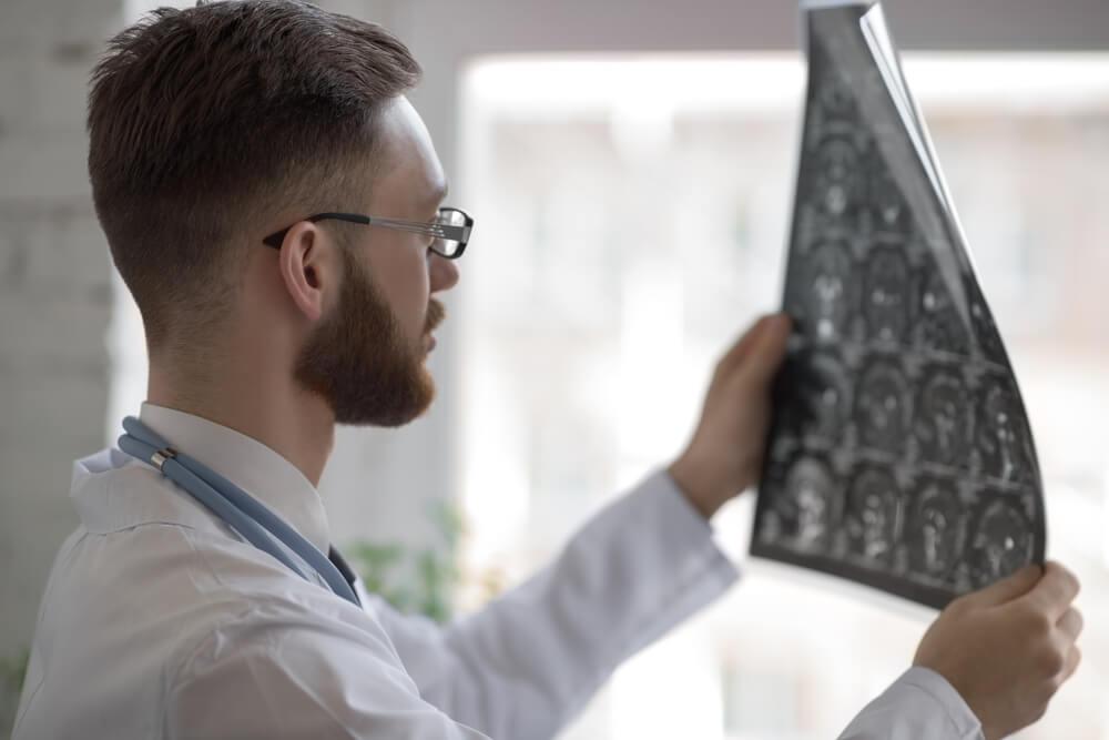 Etiología de la ataxia cerebelosa aguda