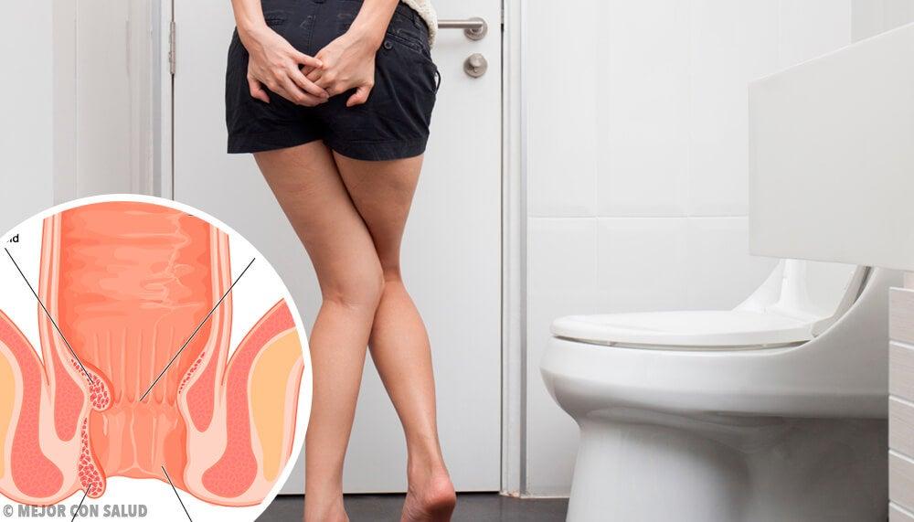 Hemorroides externas: todo lo que debes saber