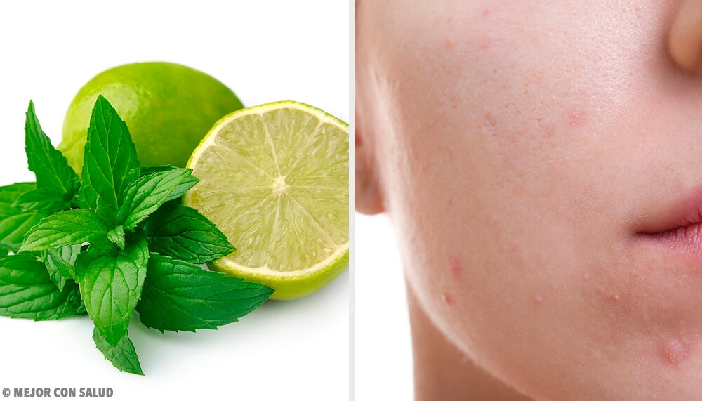 Jabón casero de limón y menta para pieles grasas
