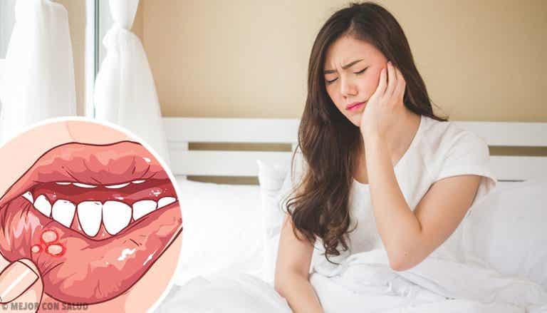 Leucoplasia: todo lo que debes saber
