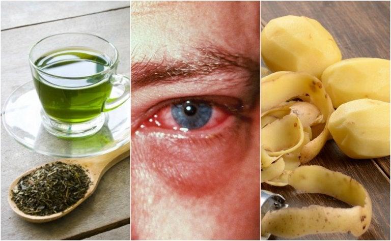 Los 8 mejores tips caseros para curar la conjuntivitis