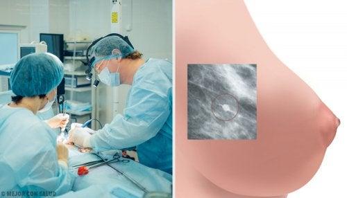 Operación de cáncer de mama