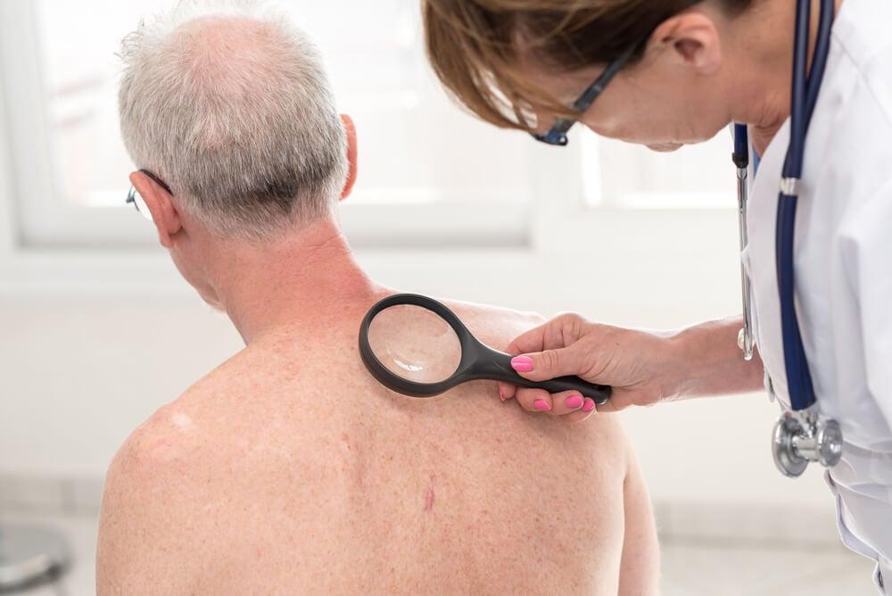 Enfermedad de Bowen o cáncer de piel escamocelular