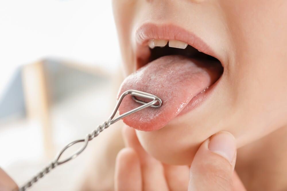 Cálculo de la glándula salival – Mejor con Salud