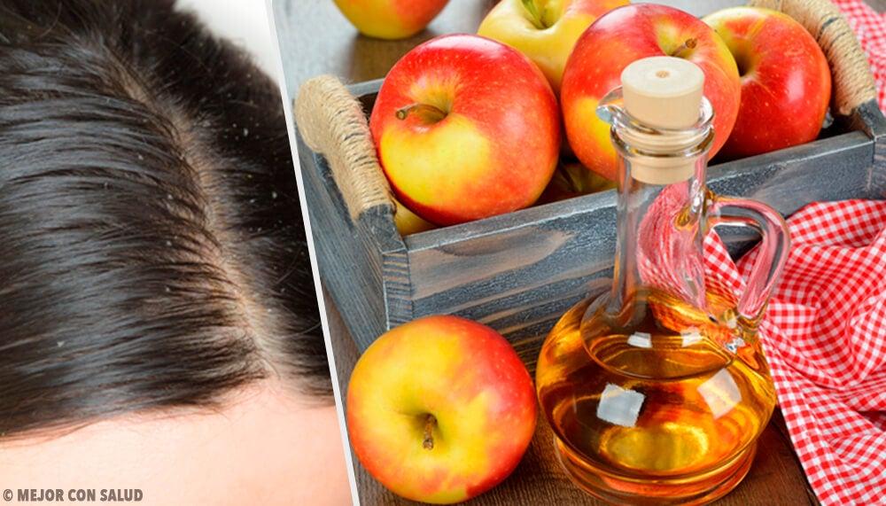 Remedios naturales para combatir la caspa