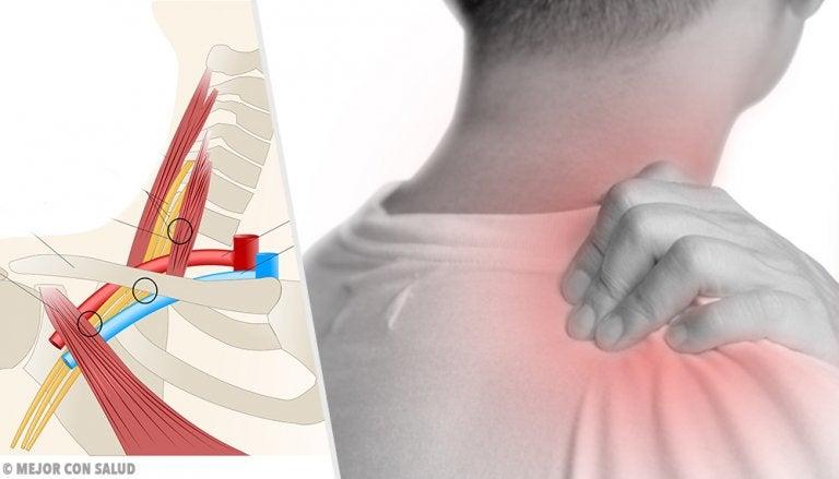 Síndrome de la salida torácica: todo lo que debes saber