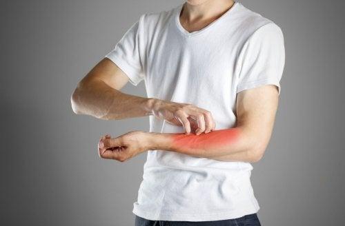 Hombre-rascandose-sintoma-de-un-eczema