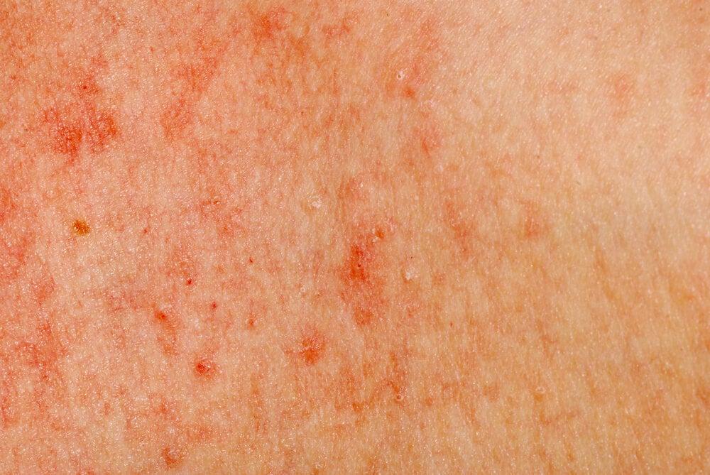 Signos y síntomas de la enfermedad de Still del adulto