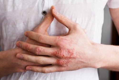 Hombre-afectado-por-eczema-en-manos