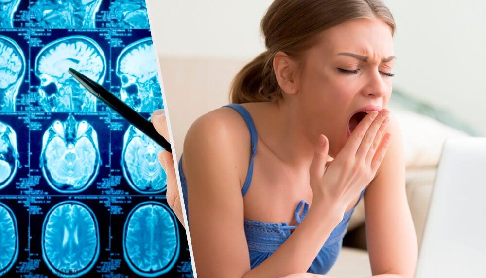 Todo sobre la narcolepsia, la necesidad de dormir