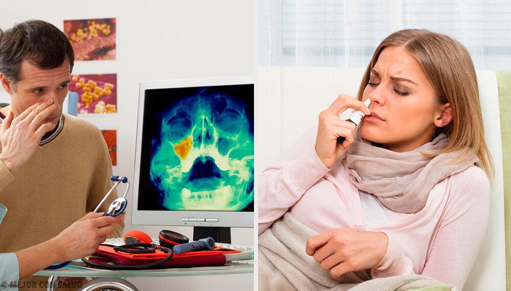 Tratamiento de la sinusitis: pautas a seguir
