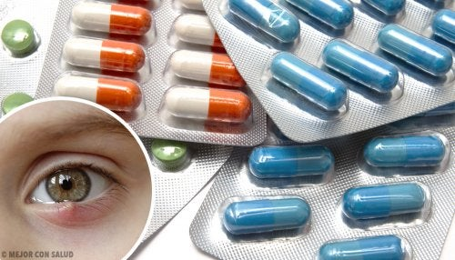 Tratamiento farmacológico del orzuelo o chalación