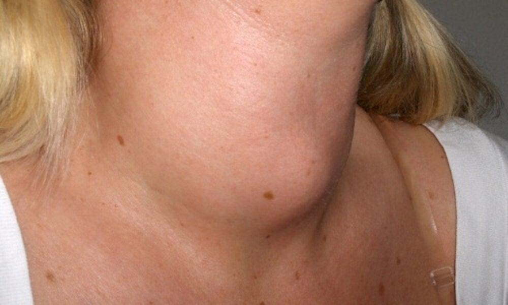 Alimentos adecuados para el hipotiroidismo