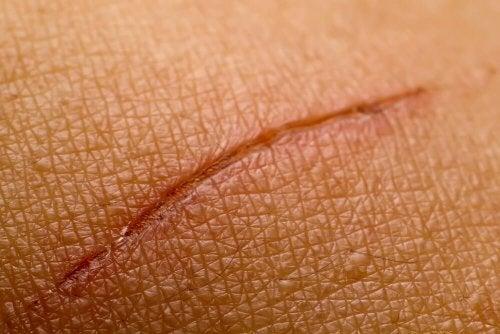 Cicatrizar heridas con cola de caballo