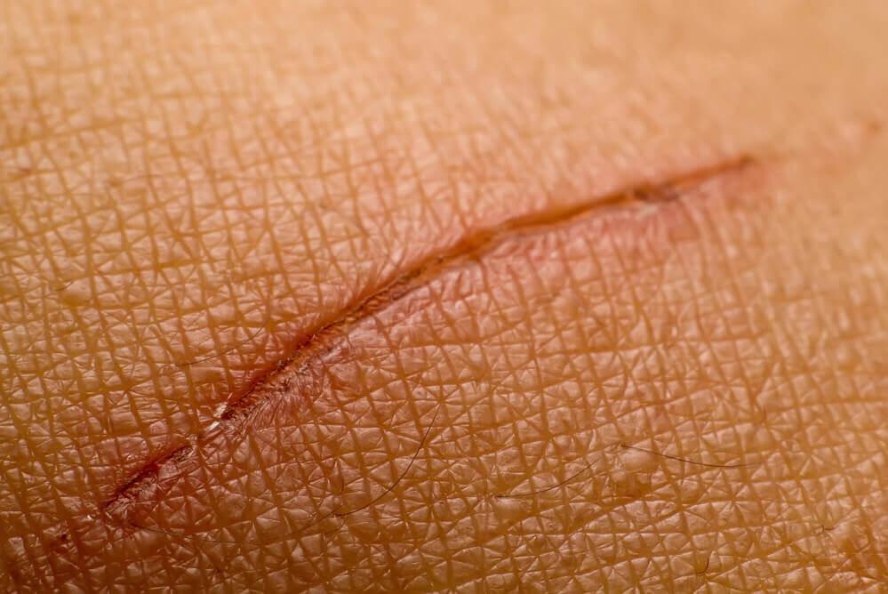 cicatriz de primera intención