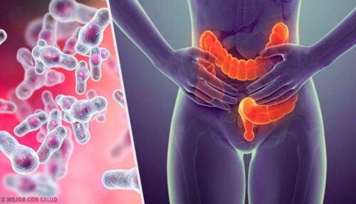 Colitis microscópica: todo lo que debes saber