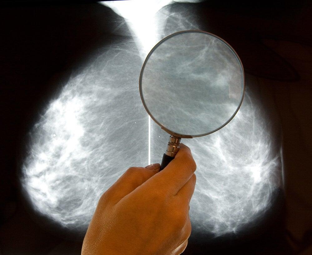 Examen radiografía mama de paciente con cáncer de mama triple positivo
