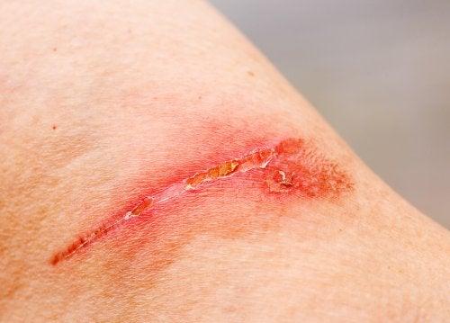 Herida en la piel