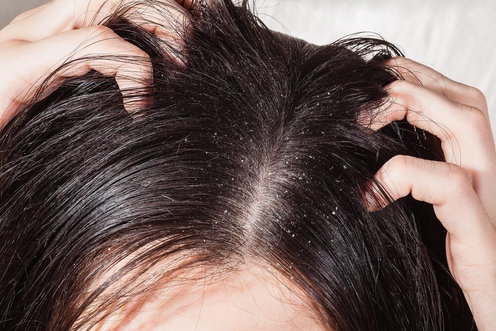 infeccion-cuero-cabelludo