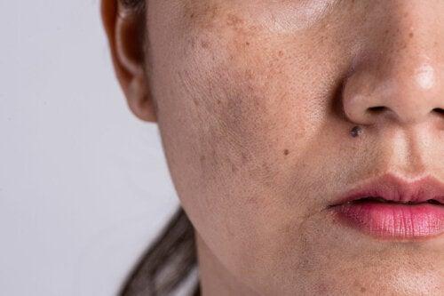Manchas en la piel ¿Qué ocasiona su aparición?