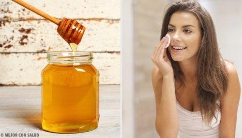 5 remedios naturales para el acné