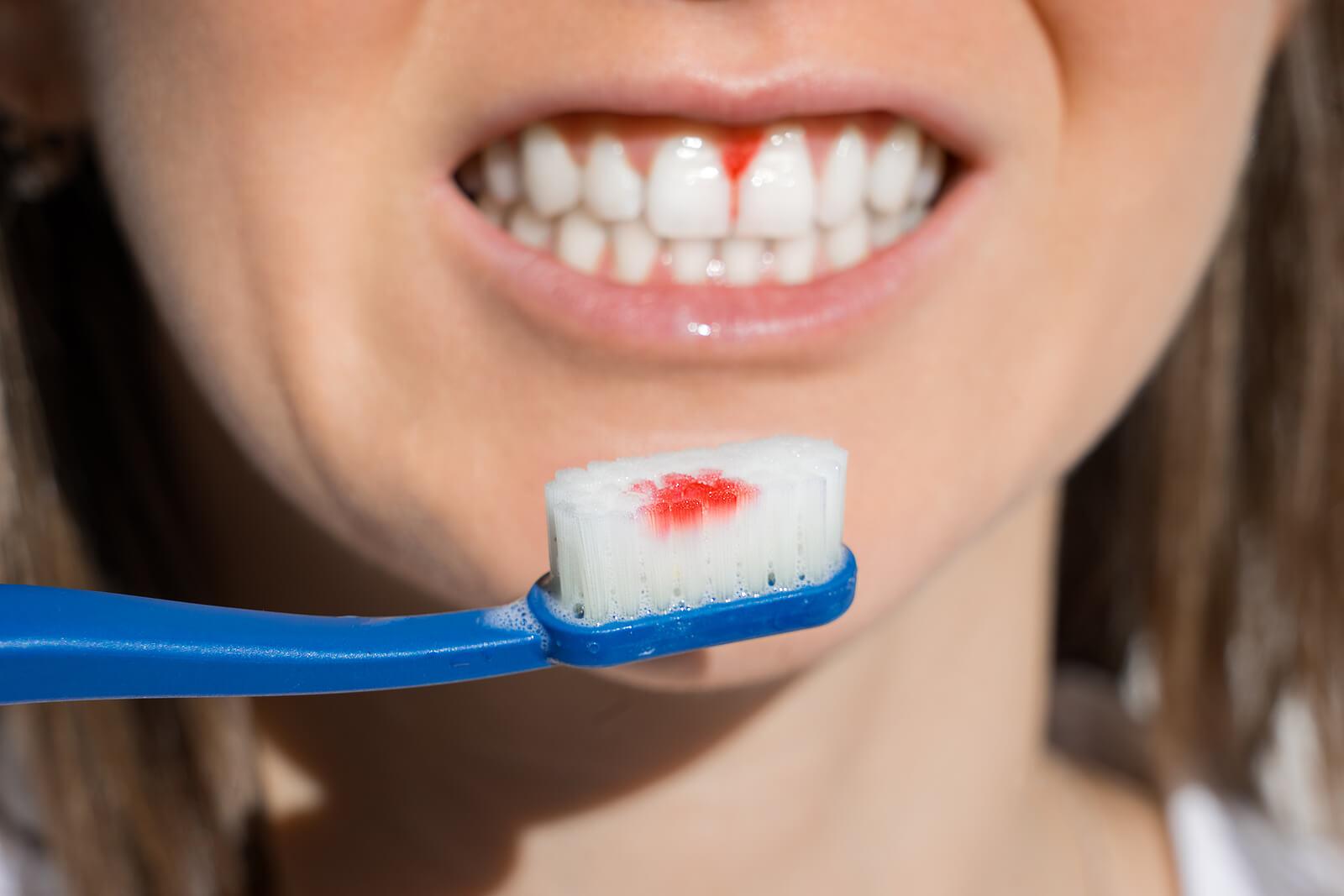Gingivitis o inflamación de las encías