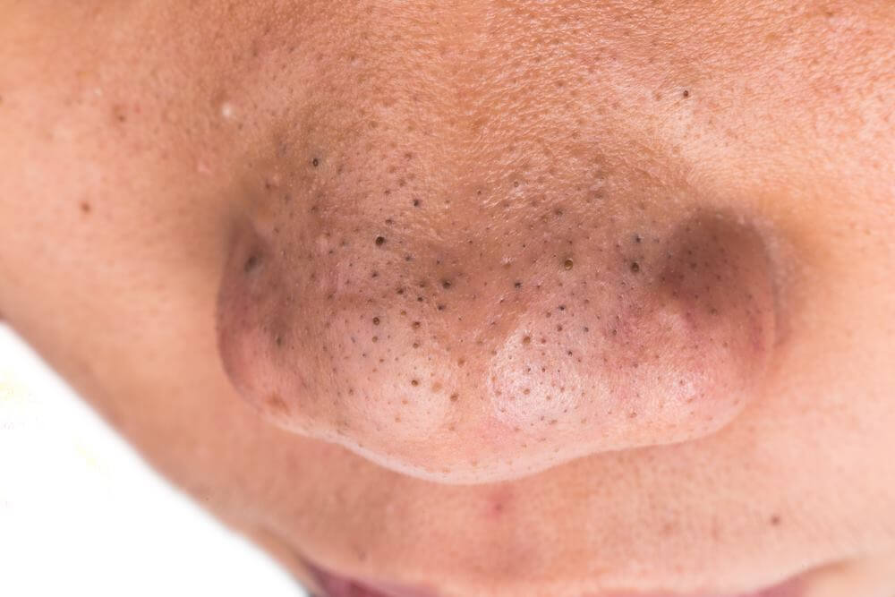 Puntos negros en el rostro.