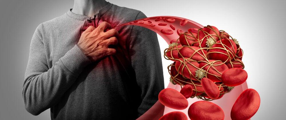 los coágulos de sangre viajan por el cuerpo