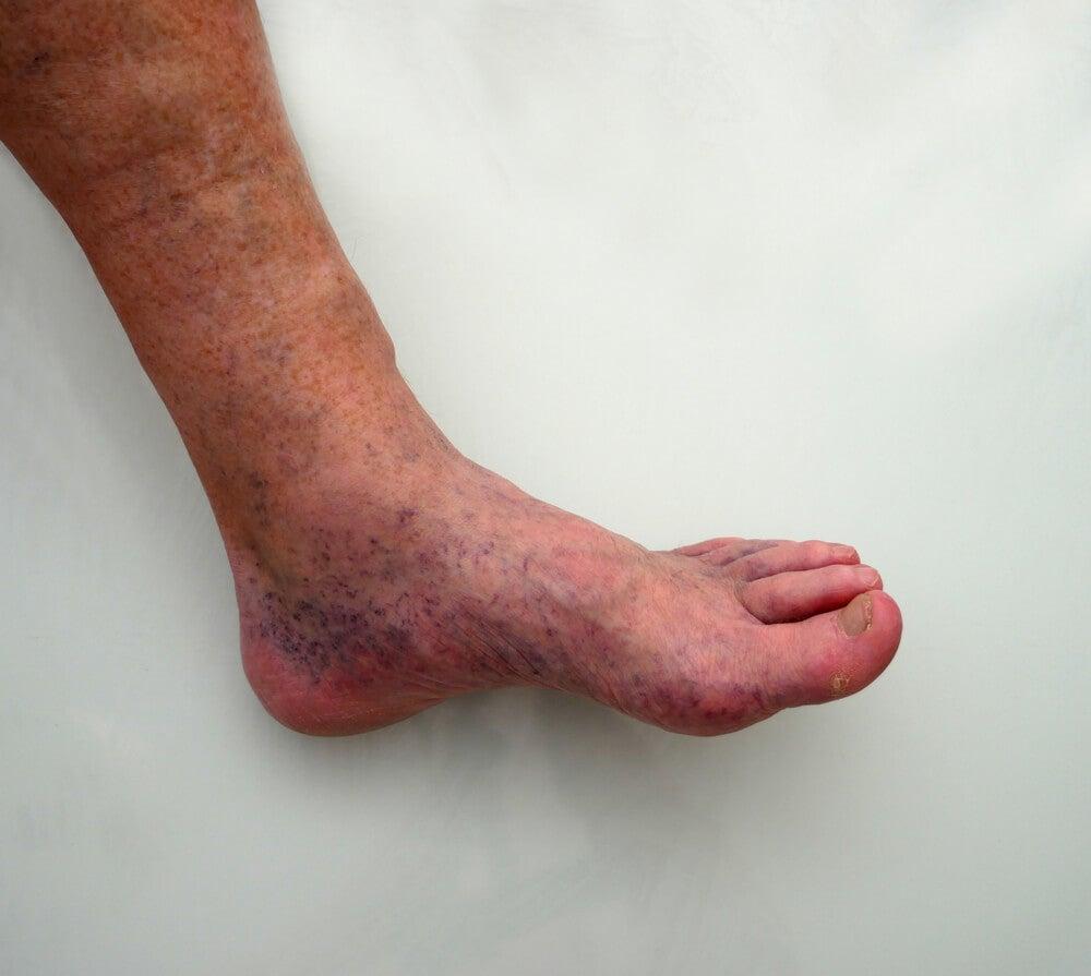 alfileres y agujas en los pies sin diabetes