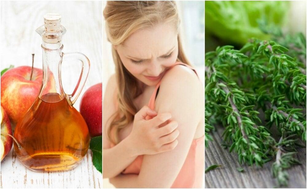 6 remedios naturales para el prurito cutáneo
