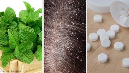 como quitar la caspa del cuero cabelludo con remedios caseros