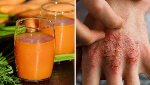 7 remedios naturales para prevenir y combatir la psoriasis