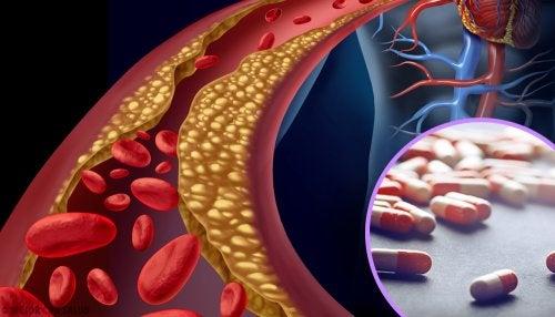 ¿Cómo influyen las estatinas en el colesterol?