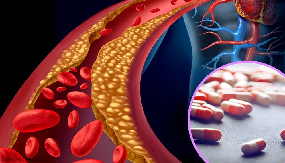 estatinas para el tratamiento de las hiperlipidemias