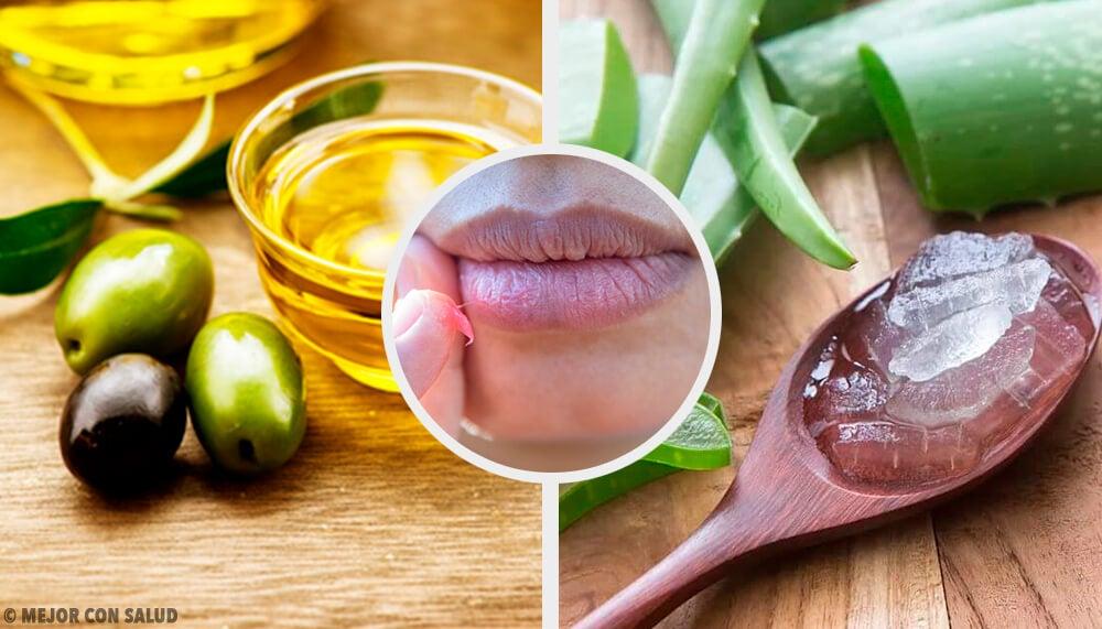 Cura tus labios quemados con estos 6 remedios naturales