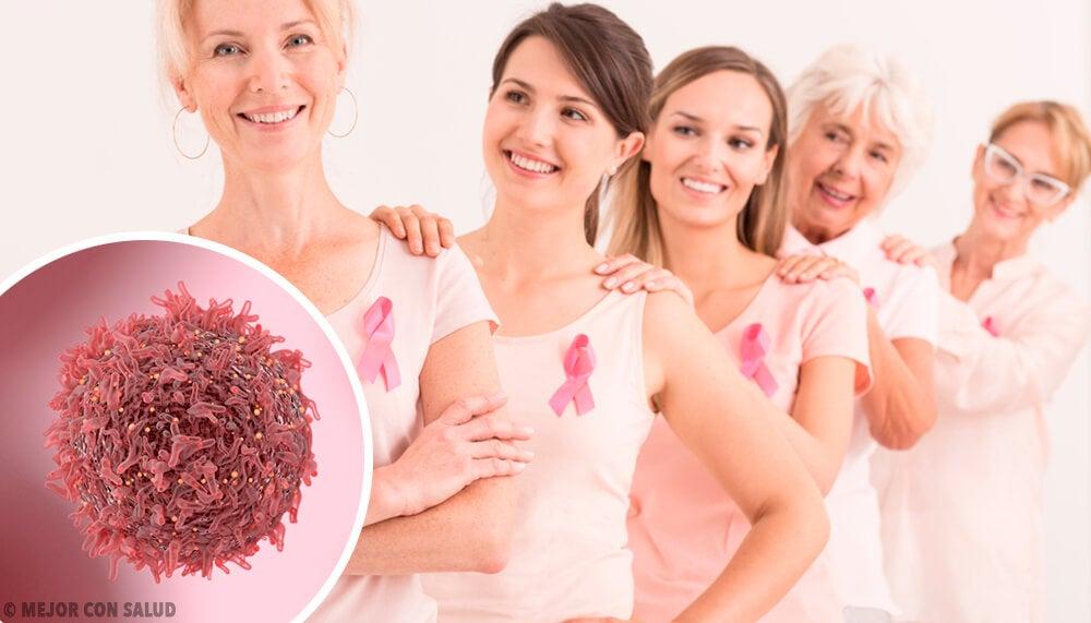 El cáncer de mama triple negativo
