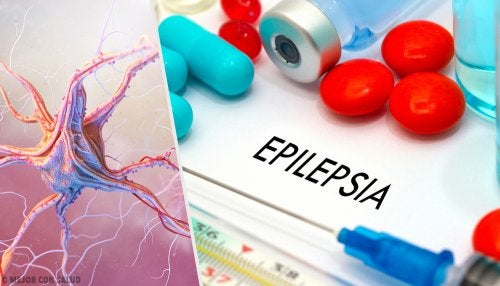 La vigabatrina en el tratamiento de la epilepsia