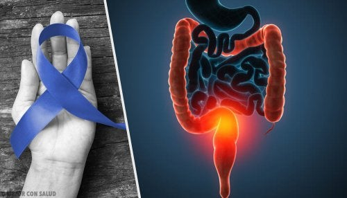 Principales causas del cáncer de colon