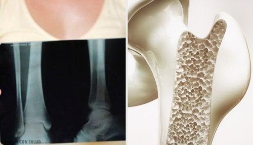 ¿Qué es la metástasis en los huesos?