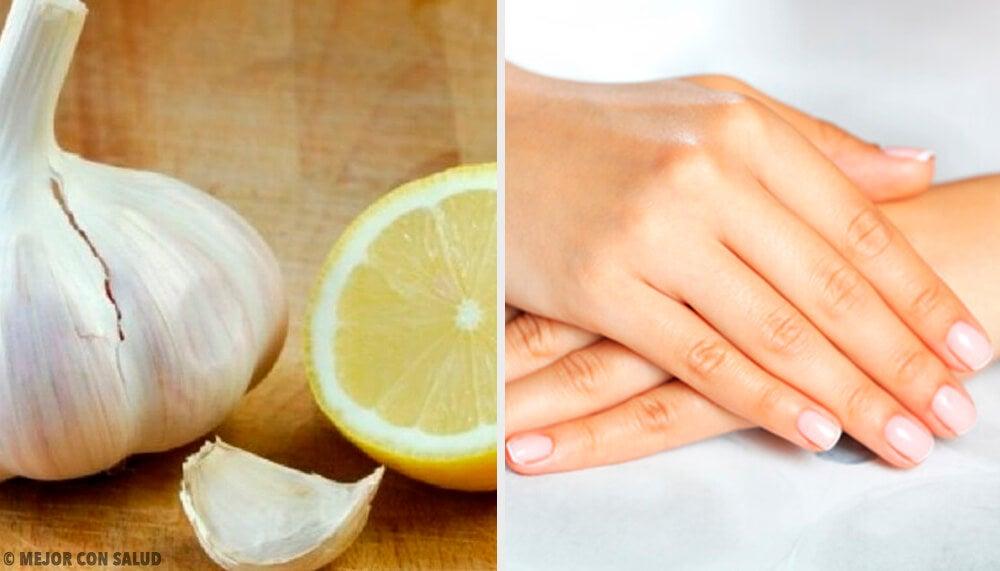 Remedios naturales para las uñas débiles