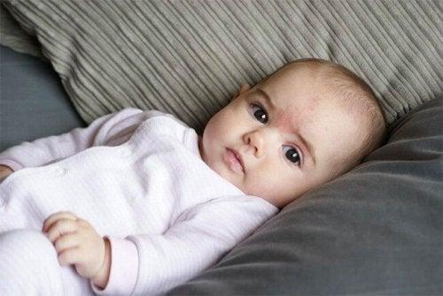 Síntomas de los angiomas en bebés